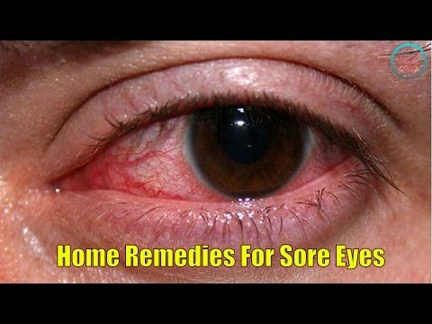 Eye Strain Burning Eyes Home Remedies 5 Natural Remedies For