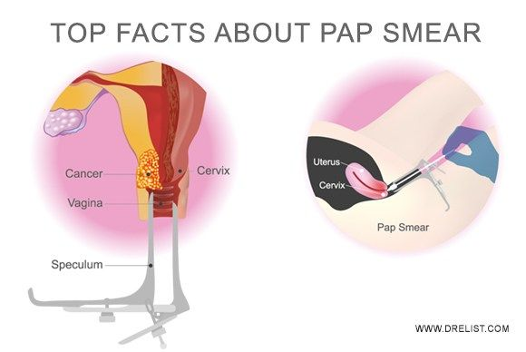 Top Facts About Pap Smear Women Above 21 Who Are  -5631