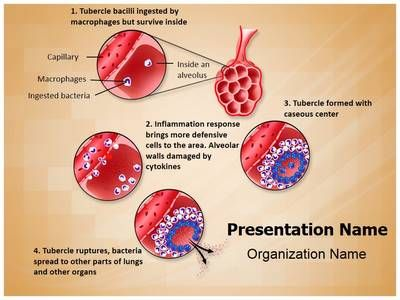 Check out our professionally designed and world-class Pulmonary - brain powerpoint template