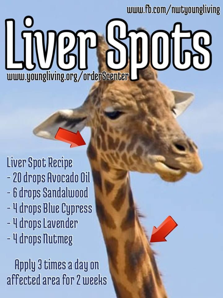 Age Spots also known as Liver Spots are grey, black or brown spots that appear on the skin in areas that have had a lot of sun exposure over the years. Liver spots are not harmful but many people wish to eliminate them for cosmetic reasons. www.youngliving.com/signup/?sponsorid=1462769enrollerid=1462769