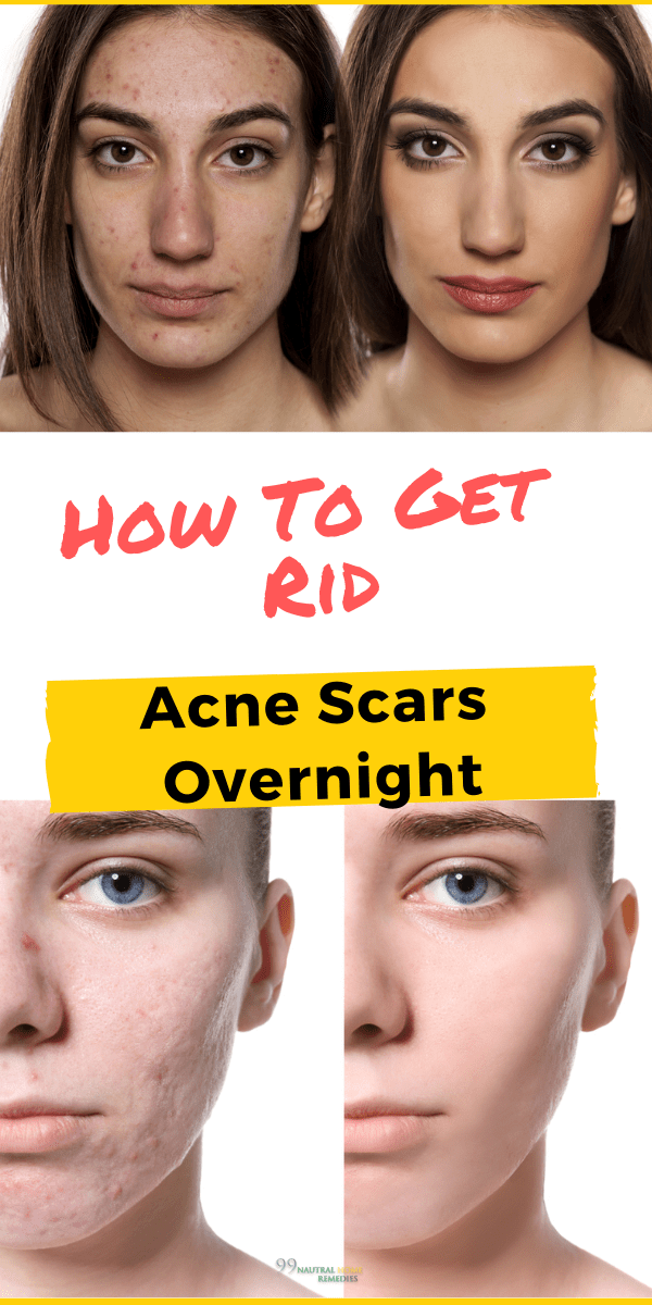 How To Get Rid Of Scars On Face Naturally Overnight
