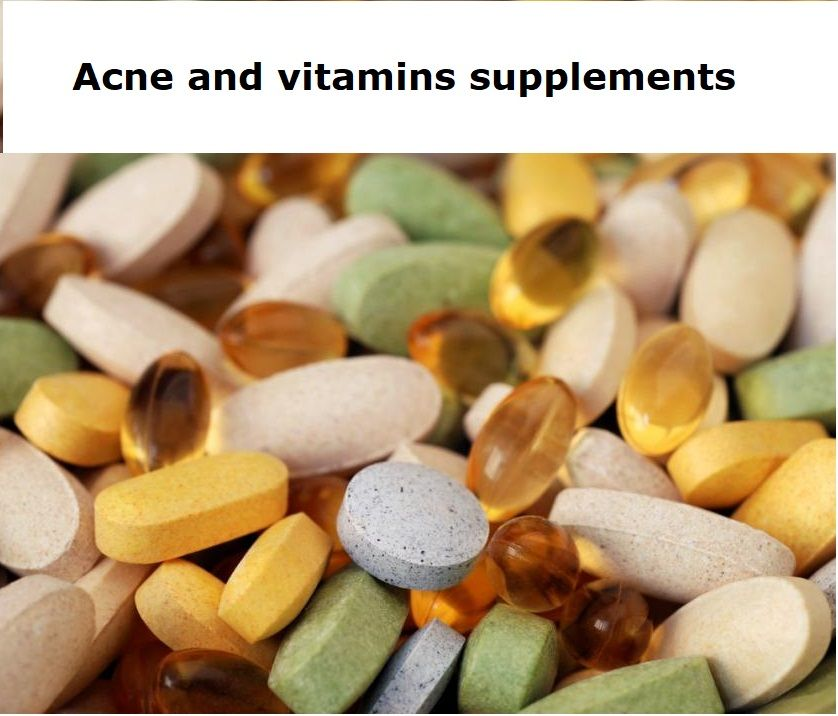 Acne and Vitamin Supplements For years, scientists, doctors, biologists, dermatologists, and dieticians have searched for and studied all of the various causes of acne. Since the majority of the world's population suffer from acne at some point in their lives, there is no surprise that...