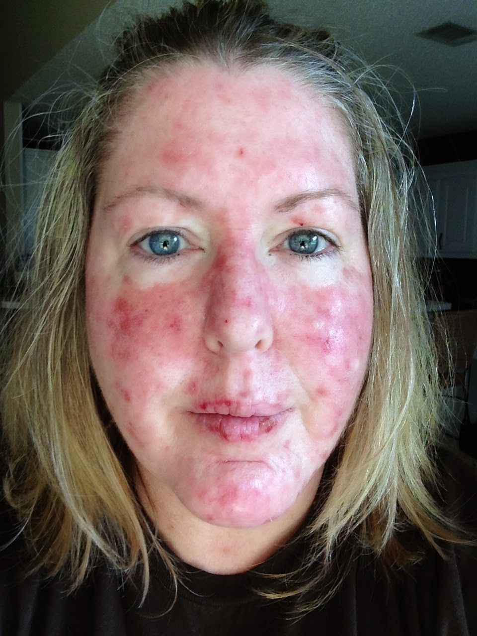 Fluorouracil Cream Before And After Car Tuning Skin Cancer Treatment Car Tuning