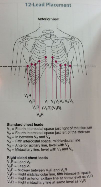 12 Lead Diagram For Both Left And Right Side