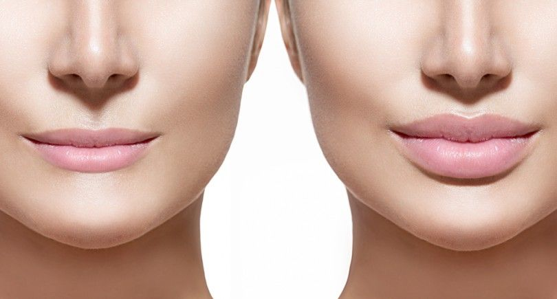 Lip Augmentation in India  Lip augmentation is a cosmetic