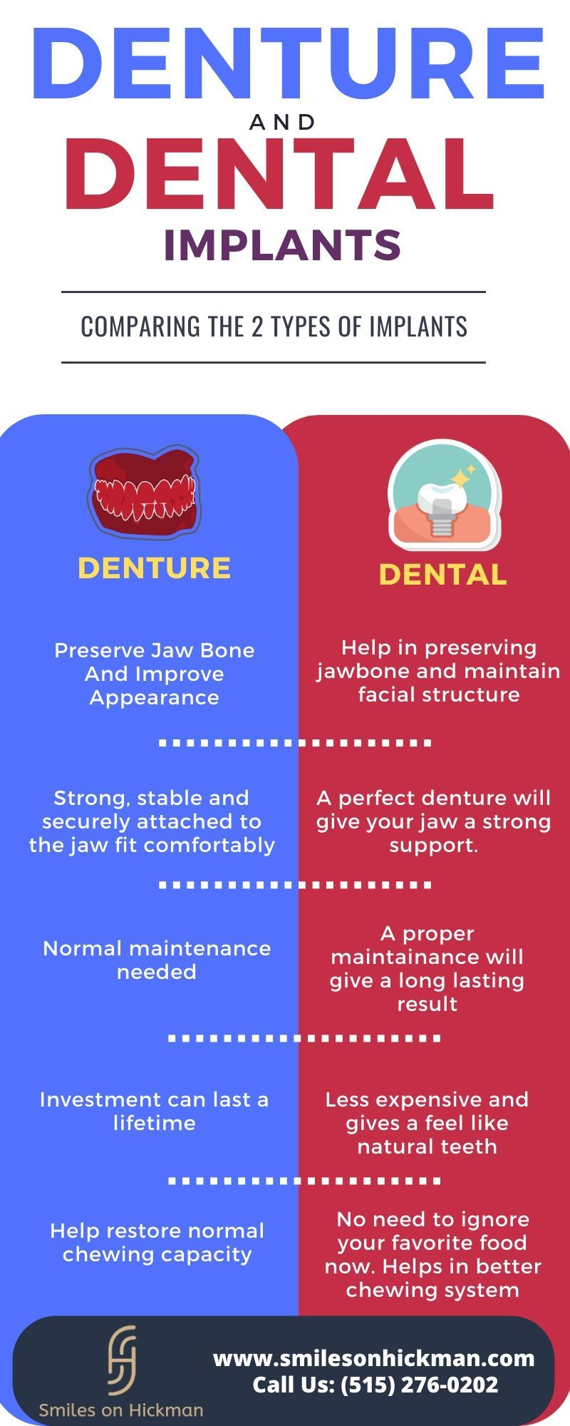 Difference between denture and dental implants