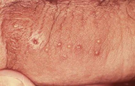 Flat warts penis