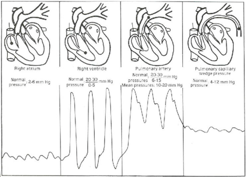 neurocriticalcare / PA Lines (Swan-Ganz Catheters