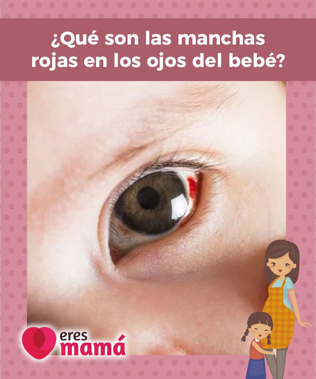Que Son Las Manchas Rojas En Los Ojos Del Bebe Bebe Manchas Y