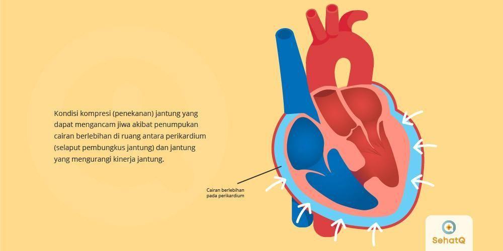 23+ Lemah jantung disebabkan oleh inspirations