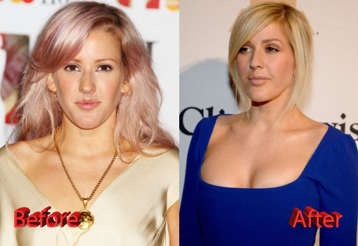 Ellie Goulding Plastic Surgery Before And After3 Pressure Society