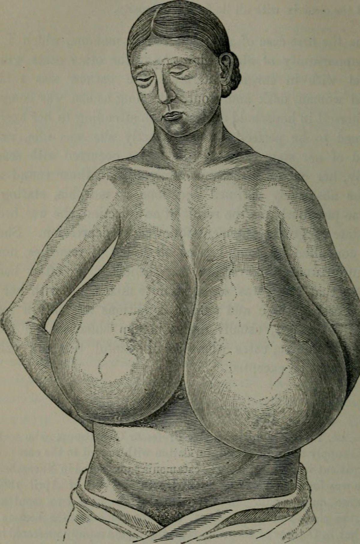 Breast hypertrophy 49