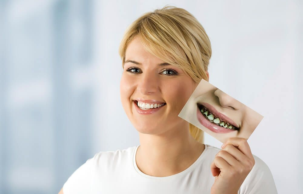Need Dental Care Services In New York In Affordable Price Then