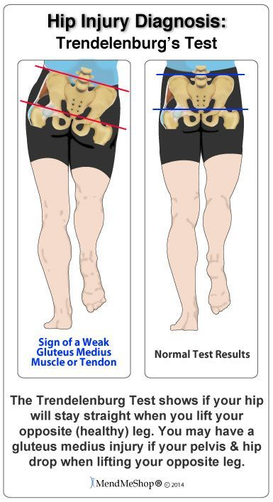 Your hips should be at the same level and they may also look at the results of something called the 'Trendelenburg's Test'. This test is done by standing on one leg and allowing the pelvis to drop on the opposite side while lifting your opposite (healthy) leg/hip.  #MendMeShop #AidYourTendon #GluteusMediusTendonitis http://www.dralexjimenez.com/strengthening-the-gluteus-medius-after-an-injury/