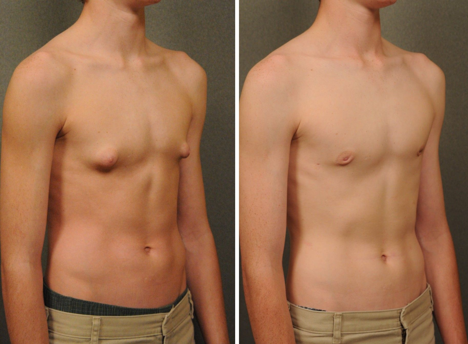 Male Breast Reduction For Gynecomastia Changes Male