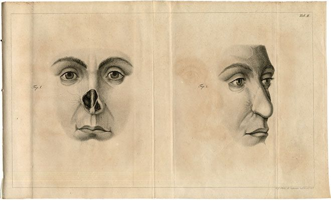 Carl Ferdinand von Graefe, 1818, Rhinoplastic. Stands as the first great treatise on plastic surgery after Tagliacozzi and Carpue.