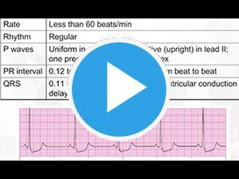ecg interpretation for nurses pdf