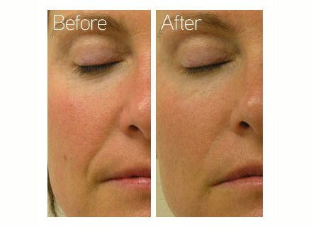 Hydrafacial Before And After Great For Skin Exfoliation