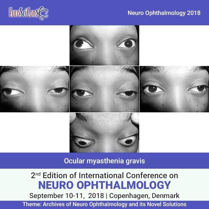 Ocular myasthenia gravis (MG) is an ailment of the neuromuscular ...