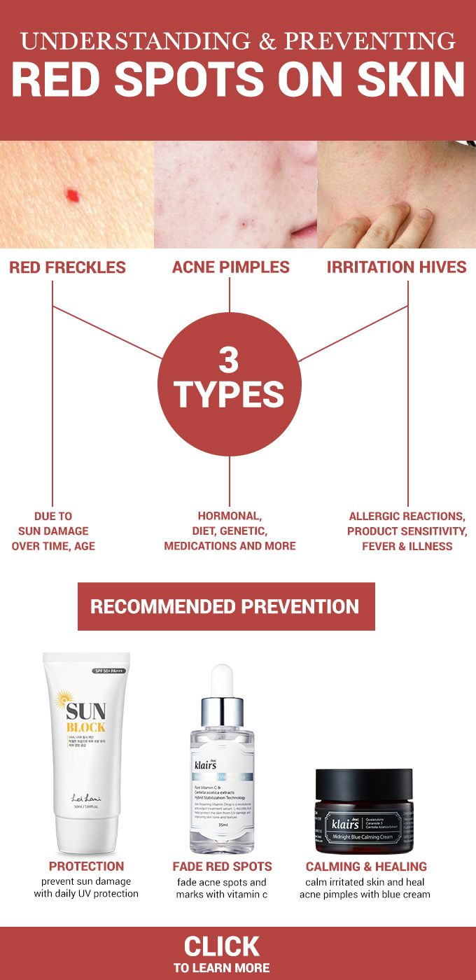 Understanding Preventing Red Spots On Skin Wishtrend Glam Skin Spots Redness Pimple Skin Care Secrets