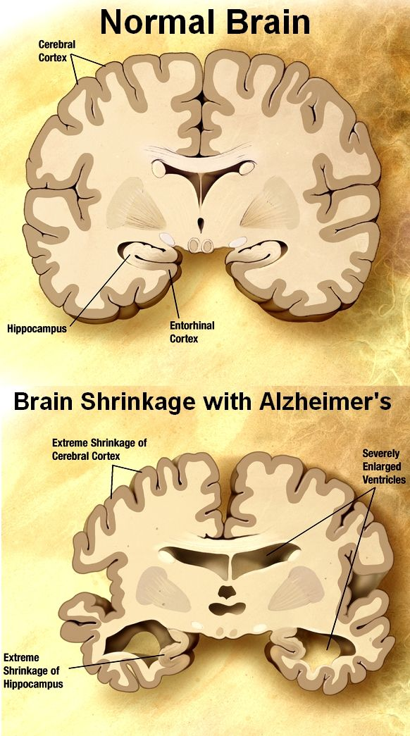 the causes symptoms and treatment of alzheimers disease Today alzheimer's disease is recognized as the most common cause of dementia  (a  what are the warning signs or symptoms of alzheimer's disease.
