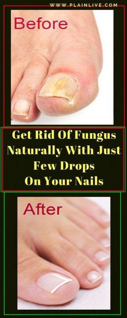 rid of fungus naturally