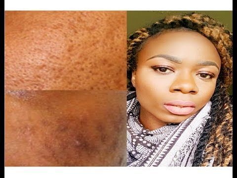 improve textured skin acne scars rashes huge pores click here