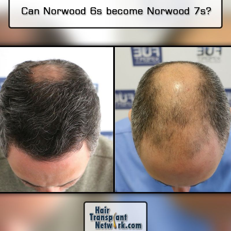 Can Norwood 6s Become Norwood 7s Hair Loss Women Hair Loss Solutions What Causes Hair Loss