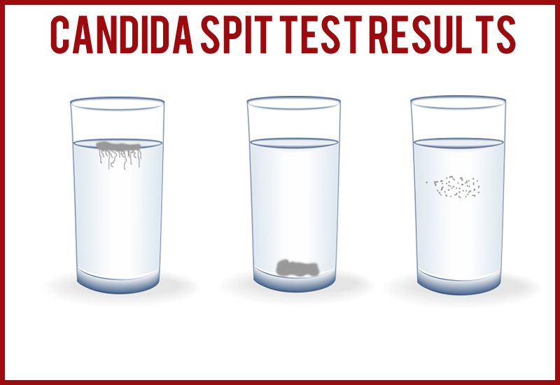 If you suffer from chronic fatigue, low libido, frequent and sudden changes in mood, poor concentration or have a weakened immune system, perhaps there is a high probability that the level of candida in...