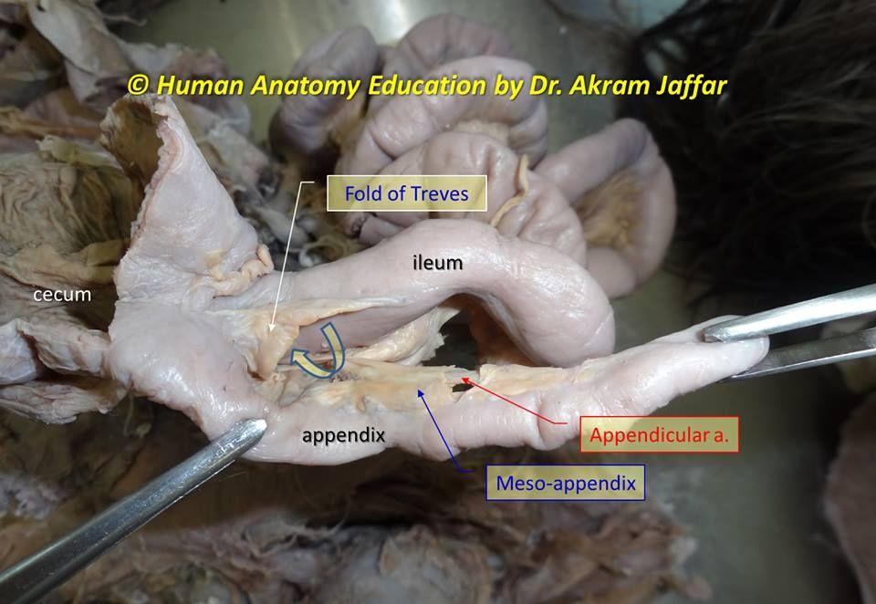 ligament of treves