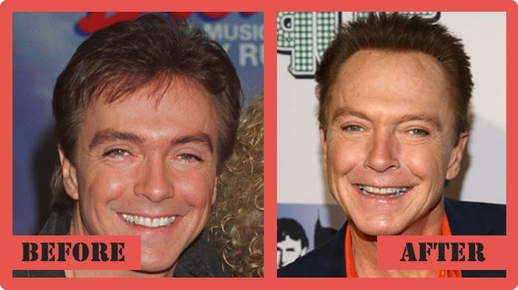 David Cassidy Plastic Surgery Before And After David Cassidy Plastic