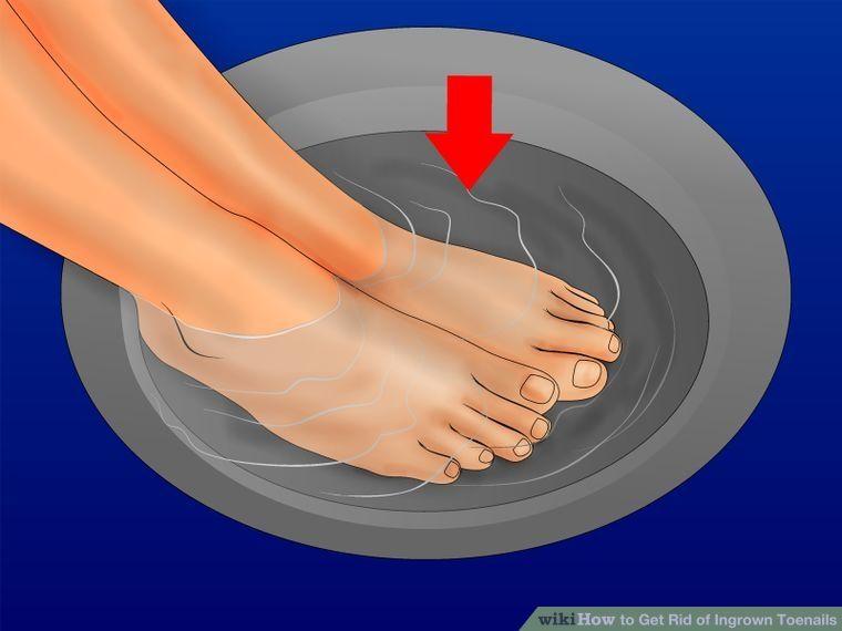 How to get rid of ingrown toenails ingrown toe nail toe