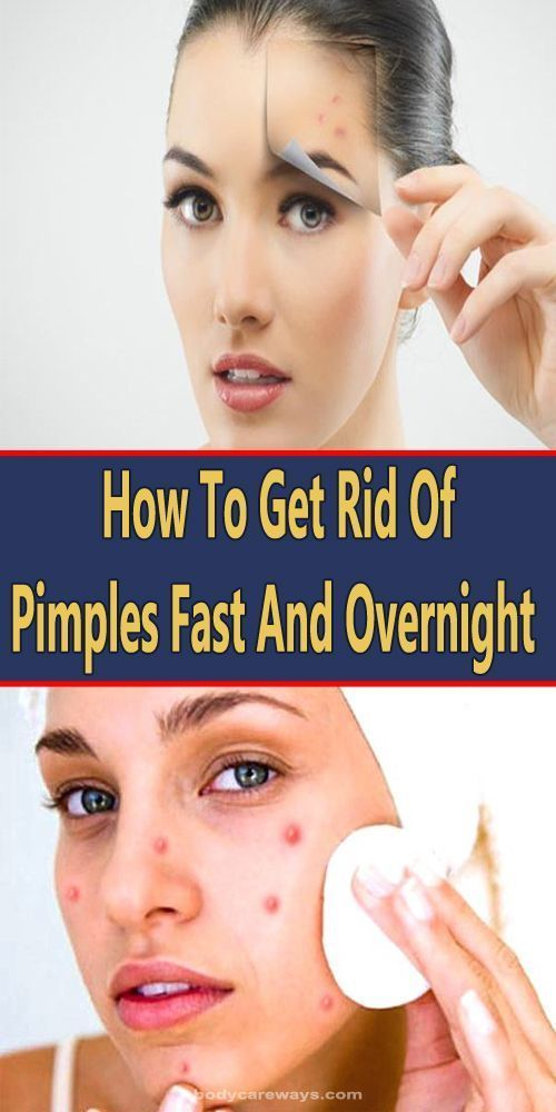 How To Get Rid Of Pimples Fast And Overnight (3 Home