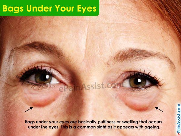 11af390def30fda3c9de80cf0d29441b - How To Get Rid Of Puffy Eyes From No Sleep