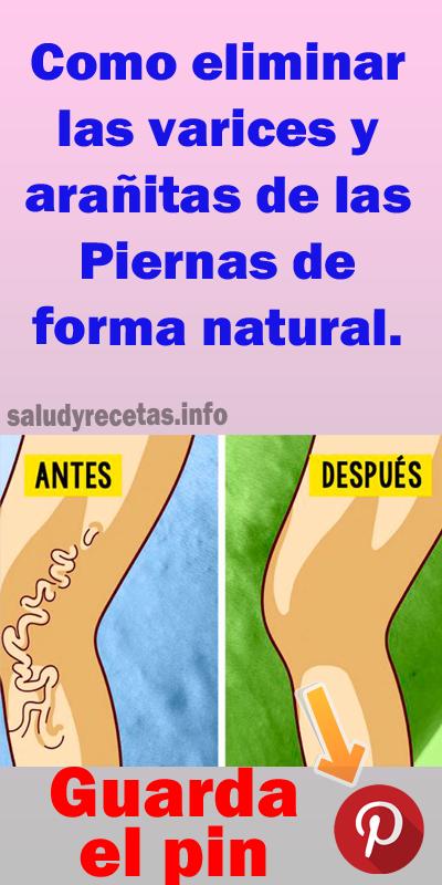 formas de deshacerse de las venas varicosas de forma natural