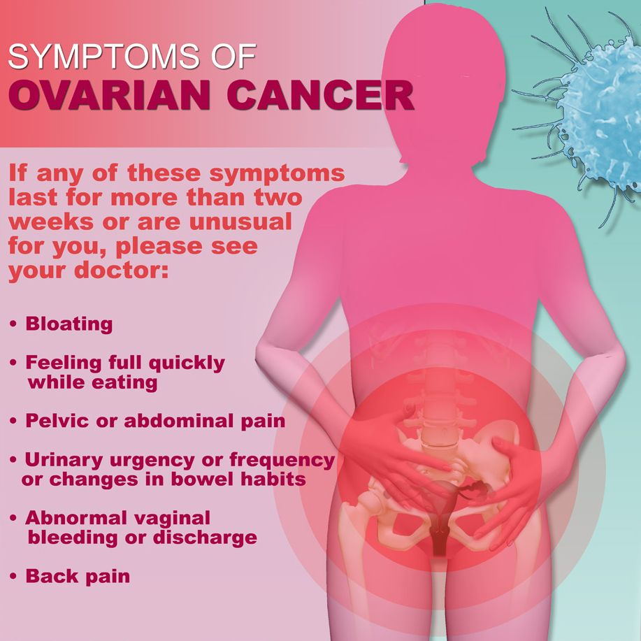 Vaginal discharge in ovarian cyst