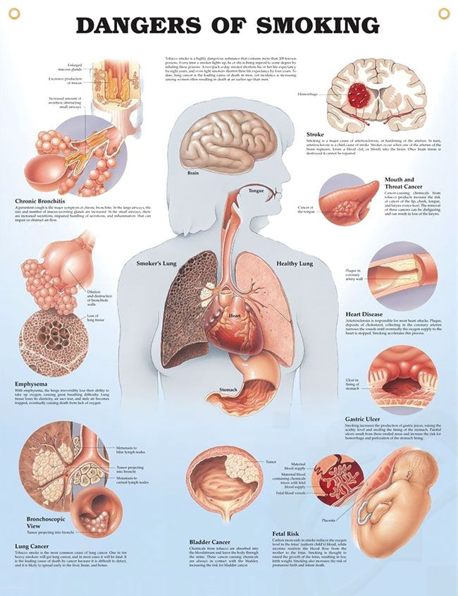 Dangers Of Smoking 20x26 Lung Cancer Lungs And Anatomy