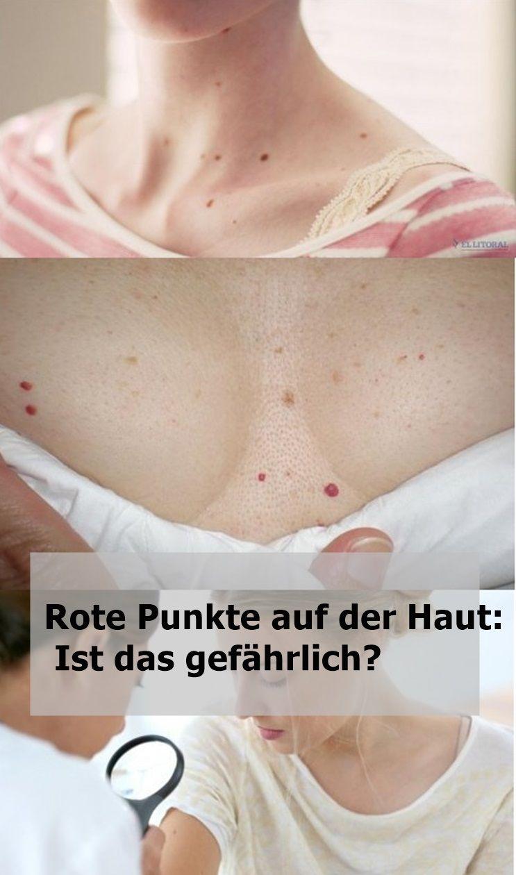 Rote Punkte Auf Der Haut Ist Das Gefahrlich Rote Punkte