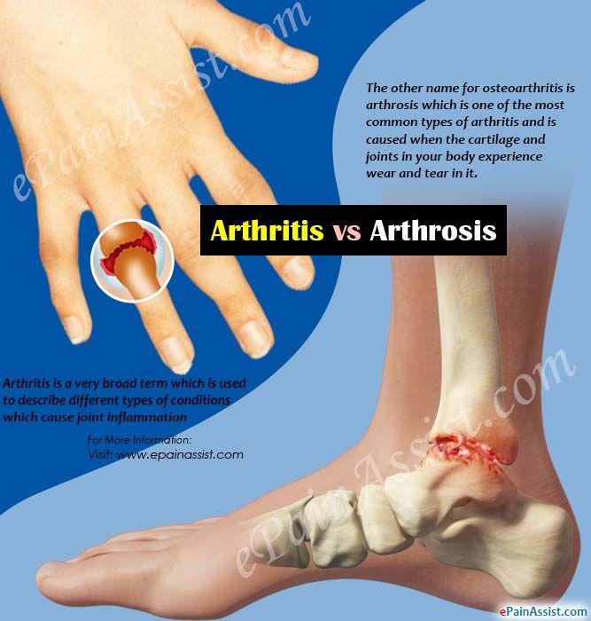 arthrosis