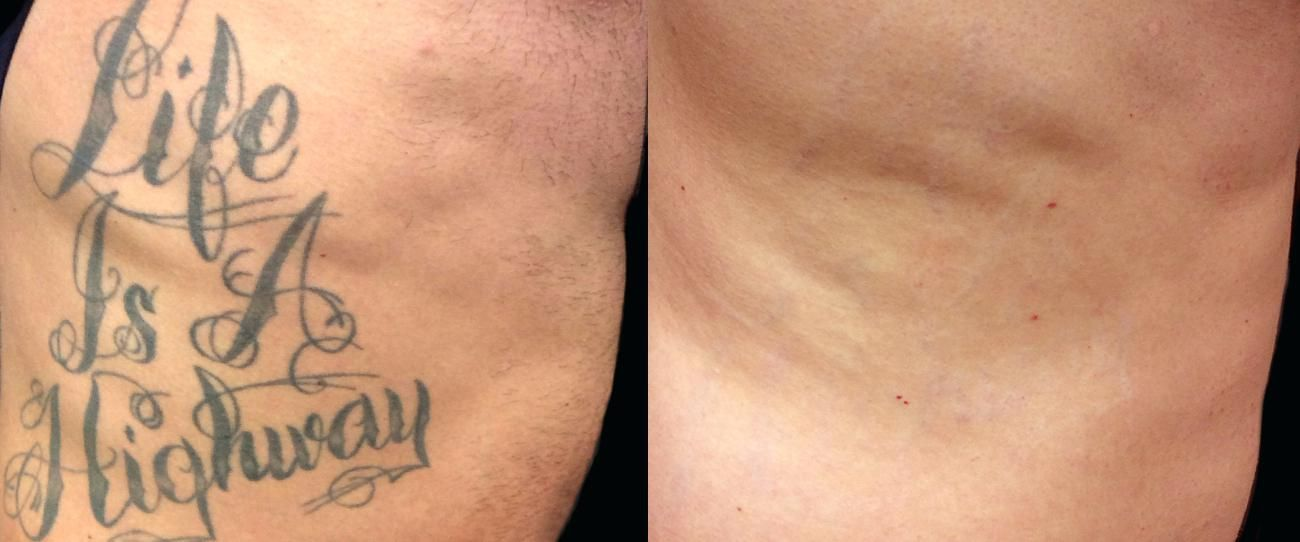 Tattoo Removal St Louis Laser Tattoo Removal St Tattoo