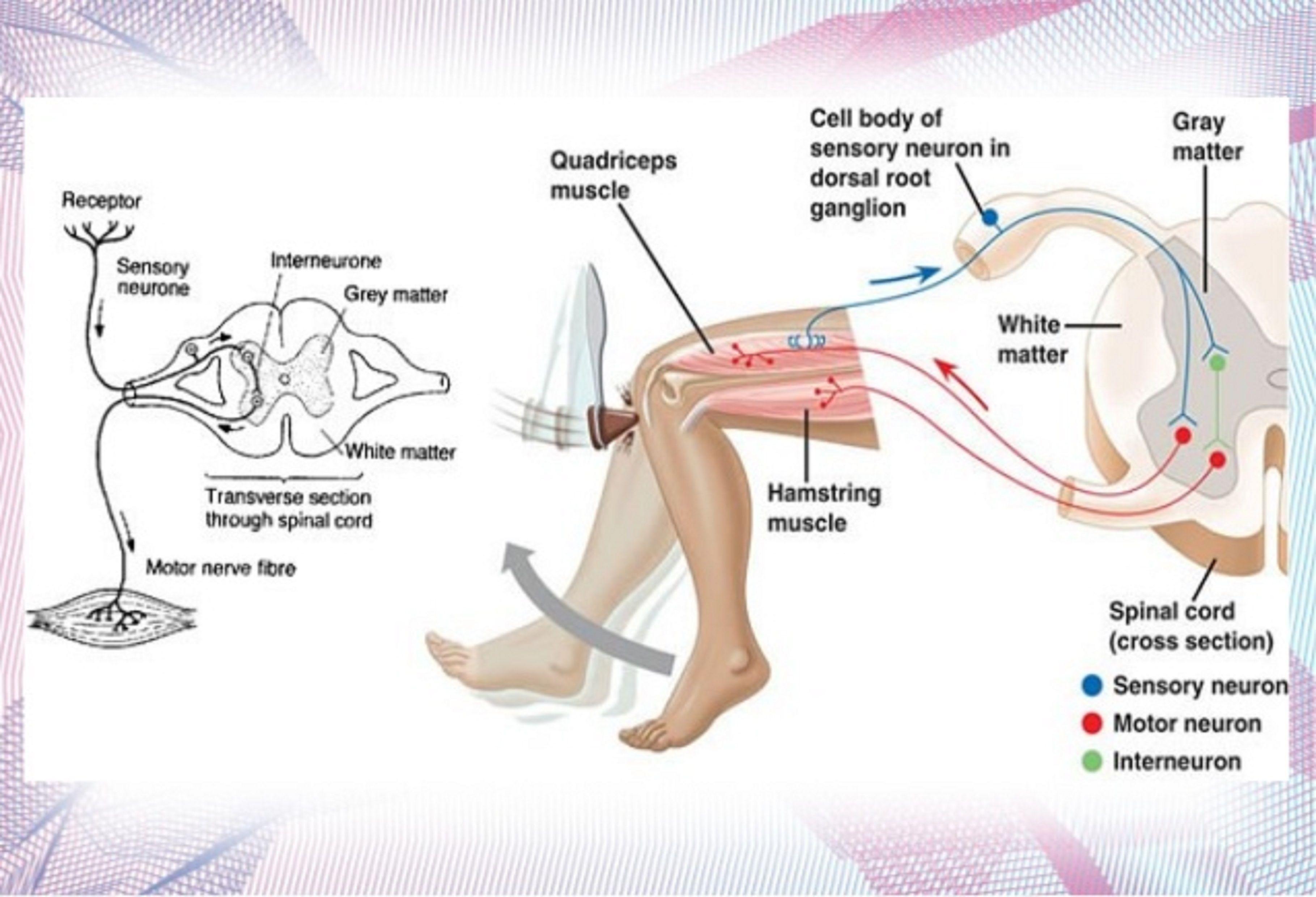 Muscle Cramp Diagram