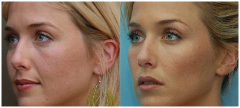 Juvederm Voluma in the cheeks helps to give a more youthful