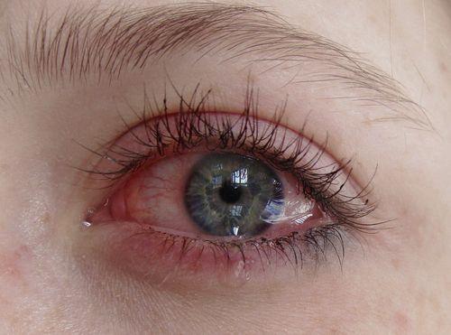 Real Eyes Realize Real Crying Eyes Beautiful Eyes Eye