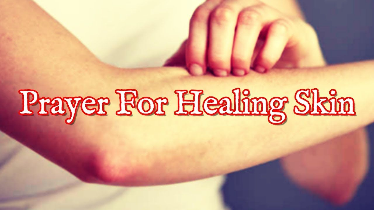 Prayer For Skin Healing - Acne, Allergy, Pimples, Eczema