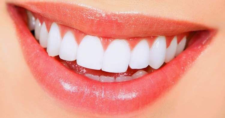 9 Formas De Clarear Os Dentes Naturalmente Sorriso Dentes