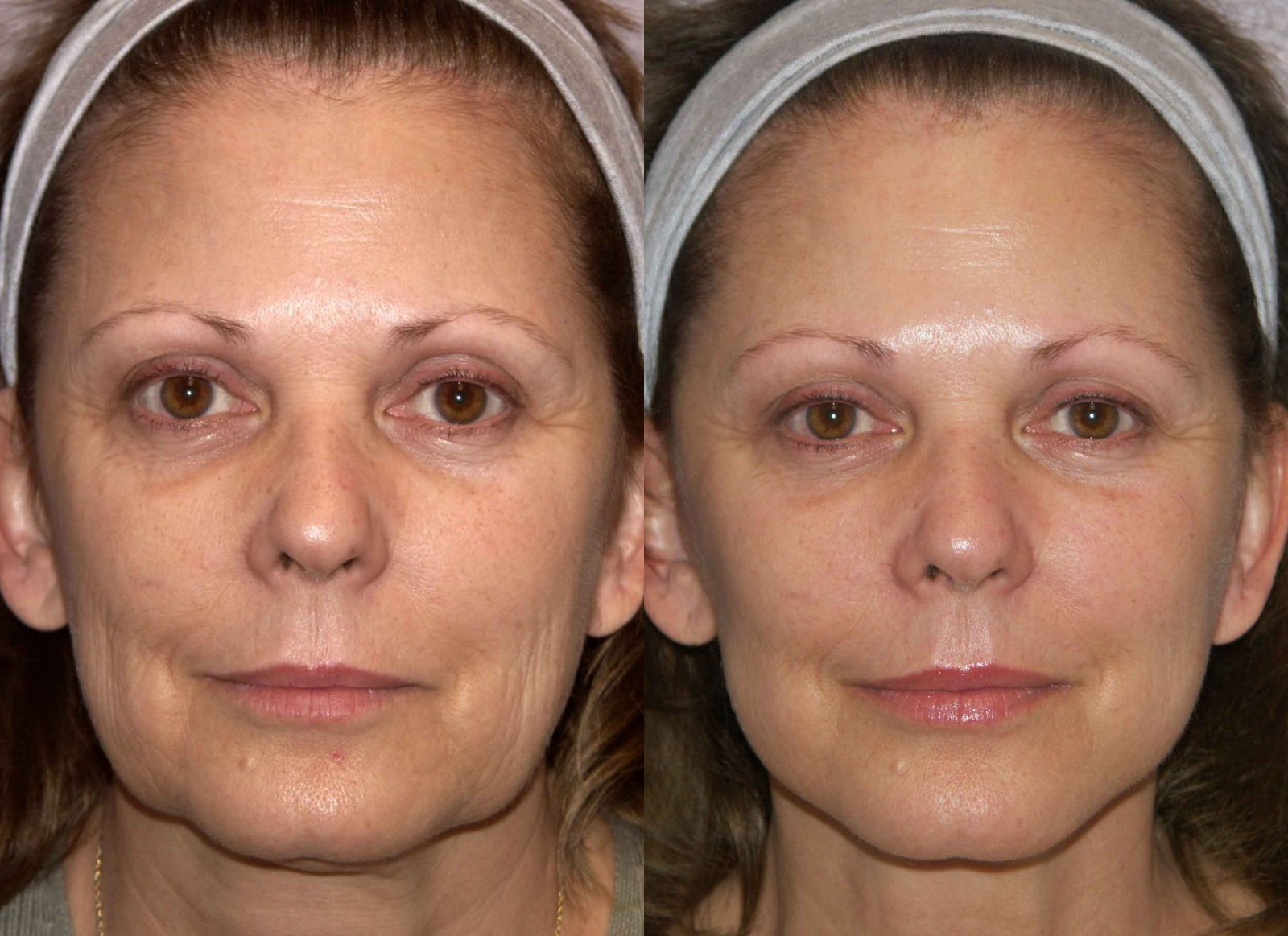 The Mini Face Lift Takes A Little Over An Hour And Recovery Time Is