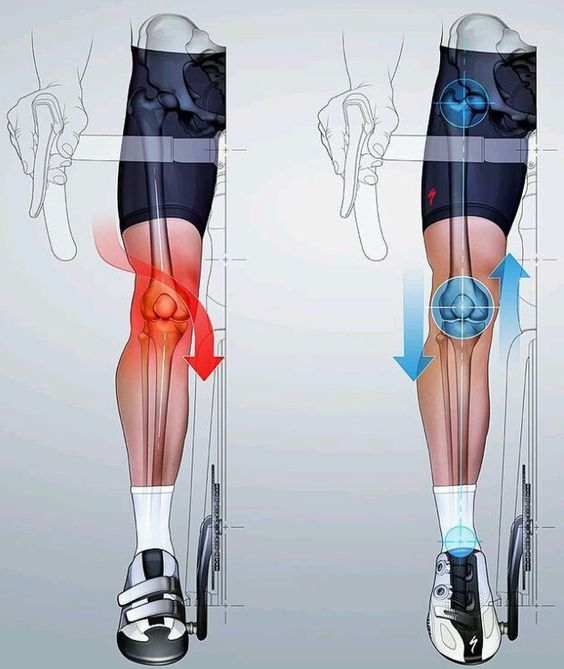 Avoid knee injury by keeping your leg straight illustration ...