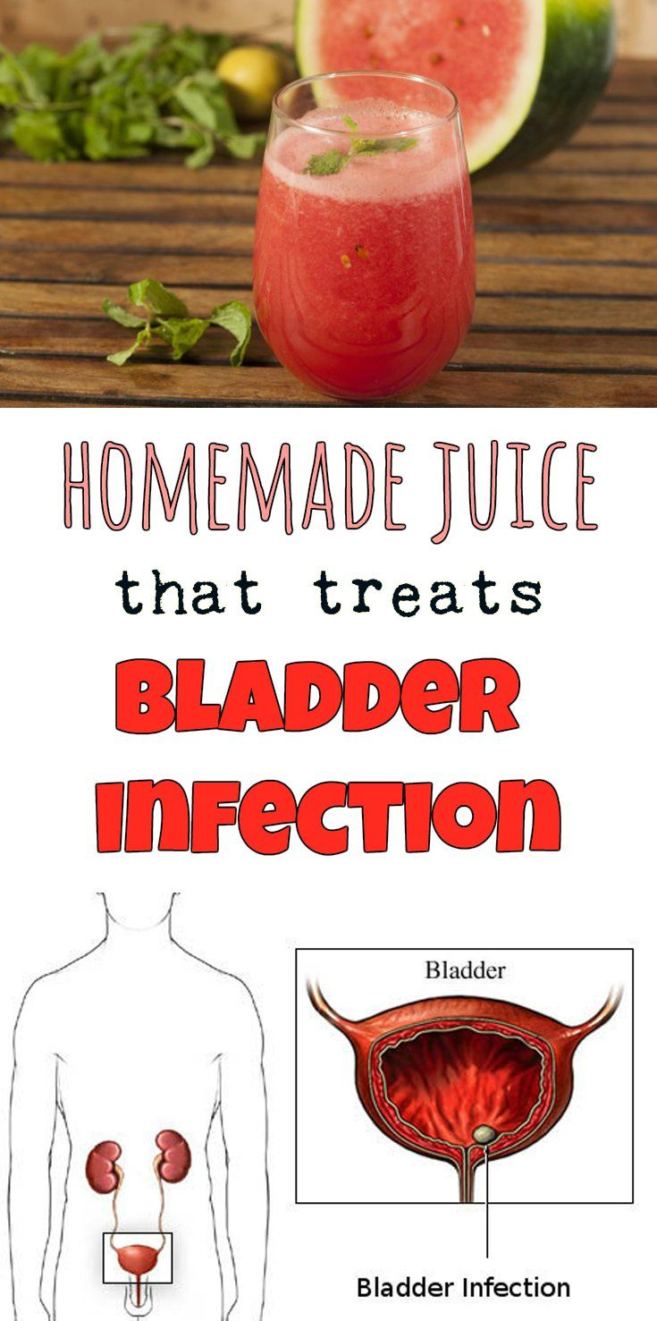 Homemade Juice That Treats Bladder Infection Beautyzone Info Homemade Juice Juicing For Health Health