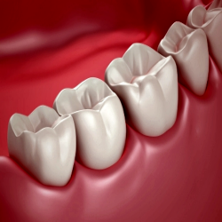 My Tips for Wisdom Teeth Extraction Recovery | wisdom teeth