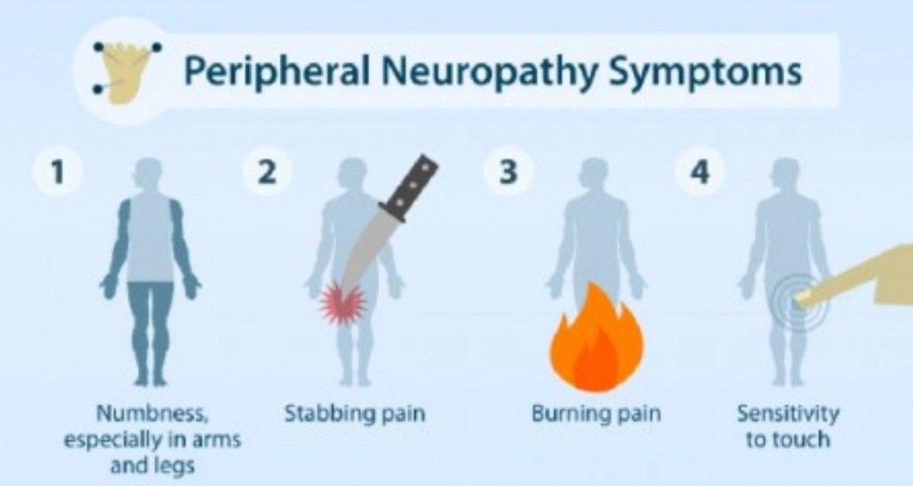 Homeopathy for NeuropathyHomeopathic Medicine